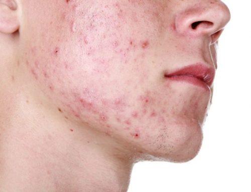 بهترین دارو برای درمان جوش صورت